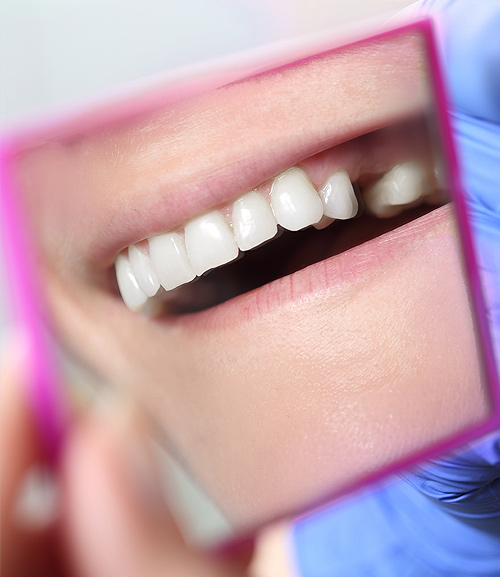 Dental Bridges | Ripley Dental