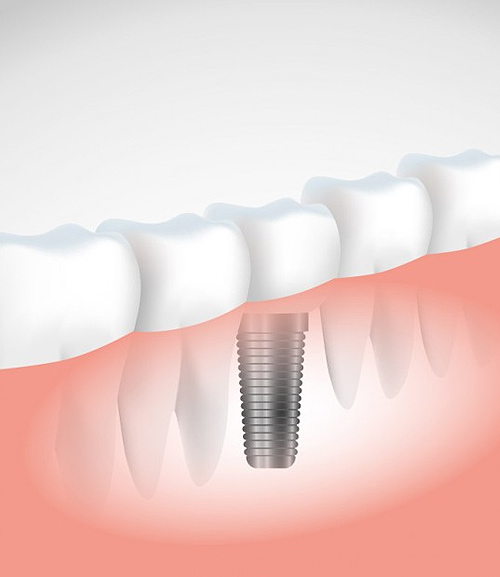 dental Implants | Ripley Dental